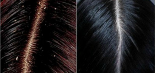 Get rid of dandruff with these natural remedies