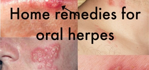 Home remedies for oral herpes
