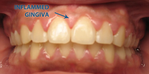 Inflammation of the gums