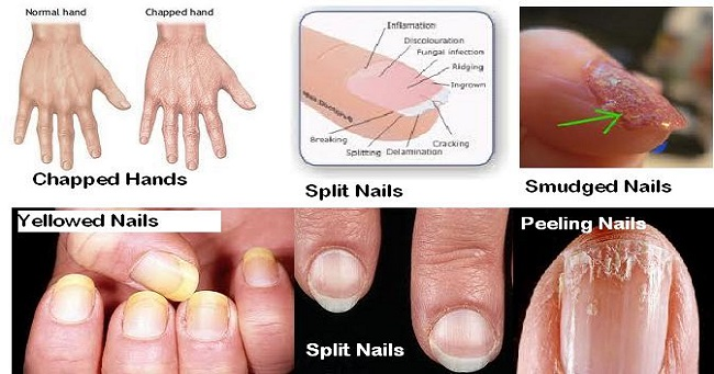 Look At Your Nails Theyre Health Indicator