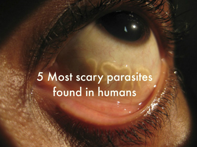 5 Most scary parasites found in humans
