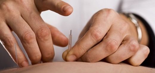 Acupuncture is the latest fad among top actors, musicians and star athletes