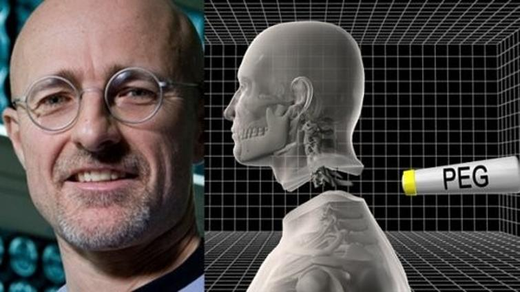 First human head transplant might happen in only two years
