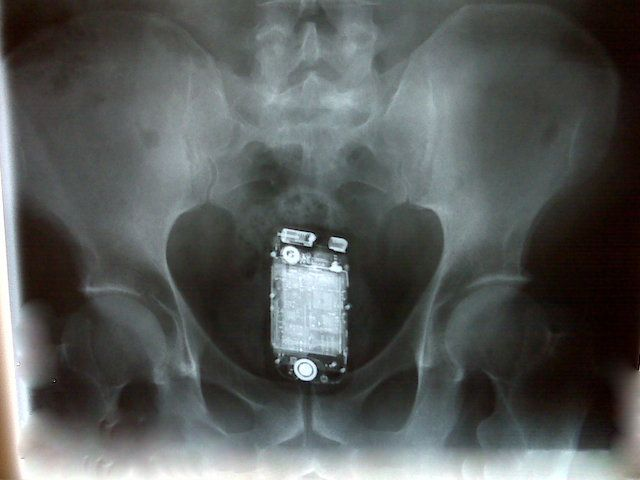 Doctor Accidentally Left Mobile Phone Inside Patient S