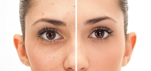 11 ways to quickly get rid of your pimples