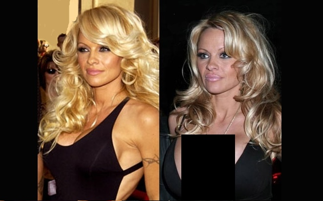 Celebrities Breast Reduction Womens Health