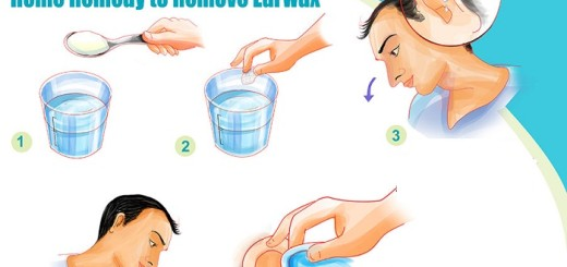 Powerful natural home remedies for earwax removal