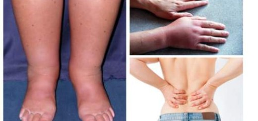 Swelling of body parts could indicate heart and kidney diseases