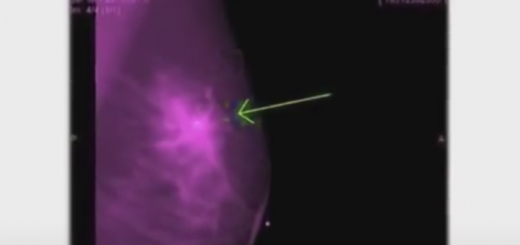 Tucking cell phone in the bra can lead to breast cancer