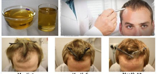 Want to regrow your hair Use this single ingredient for the same