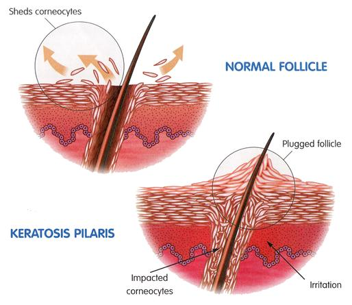 Facts You Should Know About Keratosis Pilaris The Bumpy