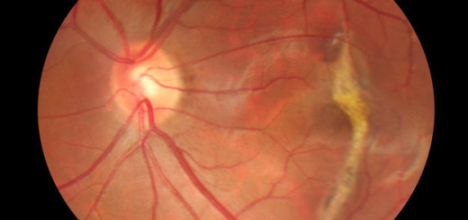 This woman is the first in UK to receive stem cell for blindness related illness