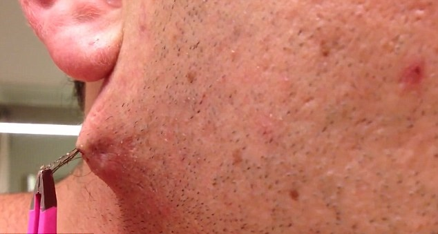 Use This Easy To Do Home Remedy To Remove Ingrown Hair