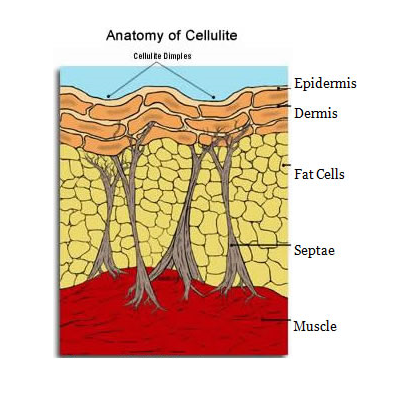 Cellulite is not fat