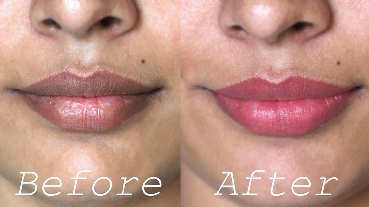 Do it yourself home remedies which will give you rosy lips do it yourself home remedies which will give you rosy lips solutioingenieria Choice Image
