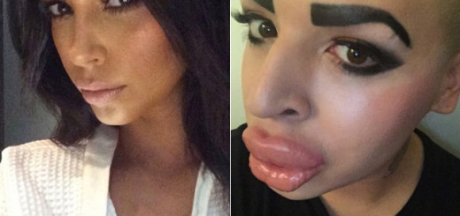 More people are opting for plastic surgery to look like Kardashians