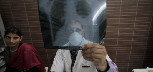 Tuberculosis now joins AIDS/HIV as highest killer disease on planet