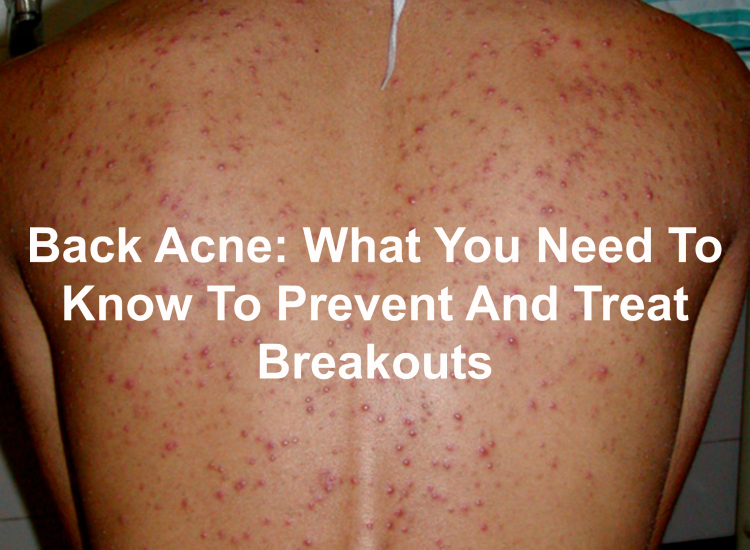What are back acne and how to prevent and treat them?