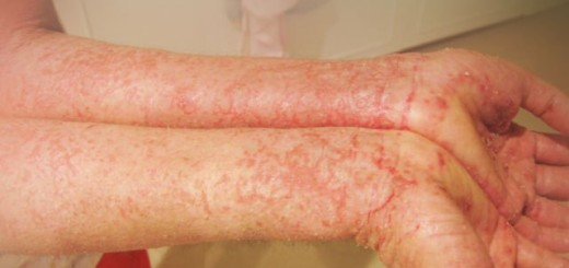 6 Highly effective and natural ways to treat eczema