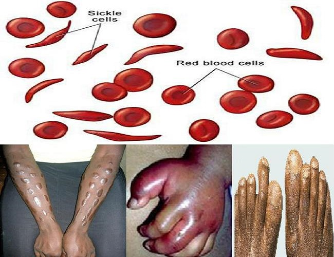 Things to look for when dating with Sickle Cell