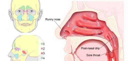 Get rid of that runny nose once and for all with (believe it or not) a simple facial massage!