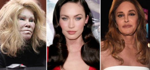 8 Most expensive celebrity plastic surgeries that will leave you dazed