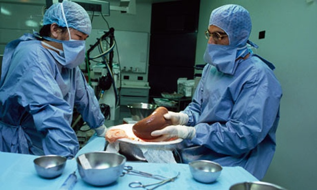 NASH increases the need for liver transplants