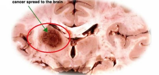Take a look at all the important points about brain cancer!