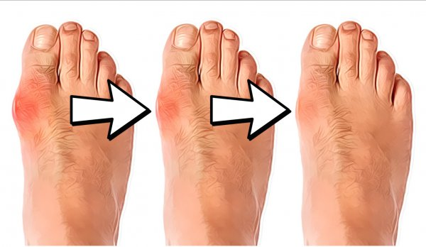 Natural Cure For Foot Bunion