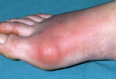What are causes of Gout and Uric acid crystallization?