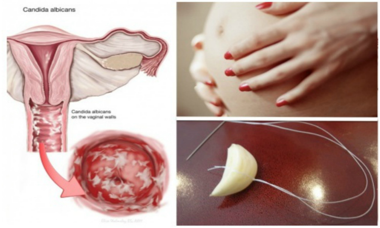 How To Cure A Yeast Infection During Pregnancy Naturally