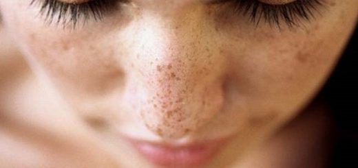 5 Easy and effective home remedies to remove brown spots of the skin