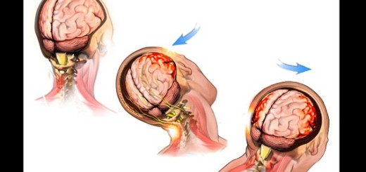 A Head injury can be serious, don't ever ignore it!