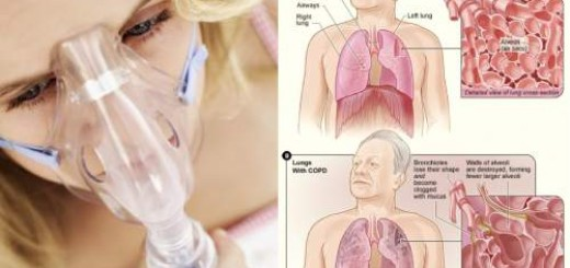 Do not ignore that smoker's cough… It can be something fatal!