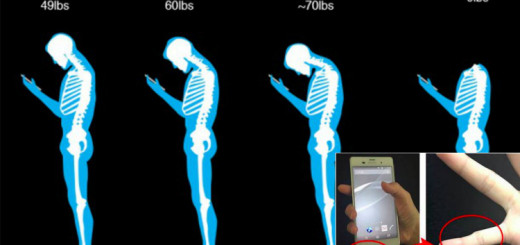 Do you know that your habit of texting is affecting your spine?
