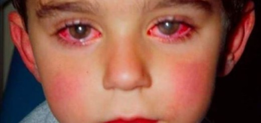 Little boy lost his eyesight to a burn injury because of this toy that even you may be having at home