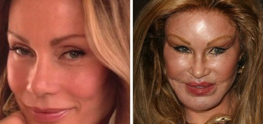 Mangled face dont care There are celebrities who dont mind their plastic surgery blunders