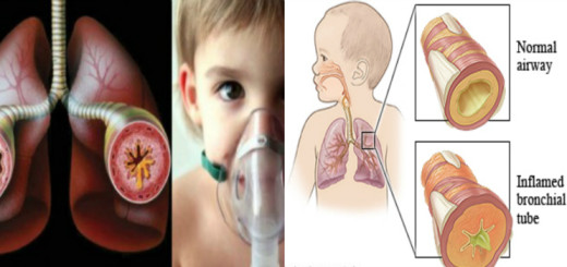 Take good care of your asthmatic child with these must-know tips