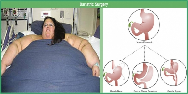 the irony in bariatric surgery the The growing popularity of bariatric surgery is bringing with it massive reductions of weight that result in unsightly excess lax skin  the irony is that in most .