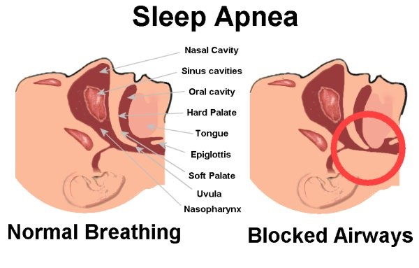 Don't ignore the blockage of air passage that causes snoring