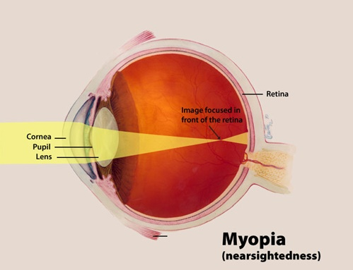 Myopia cases will be on rise in the coming year