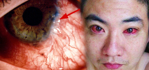 A 40-year-old man was diagnosed with eye cancer because he did this every night!