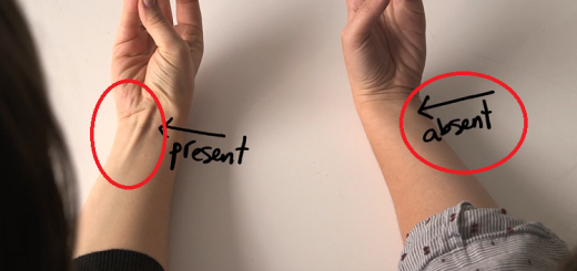 Do you have a vein that pops out on your wrist? Find out what it means!!