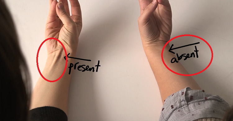 how to develop veins in arms