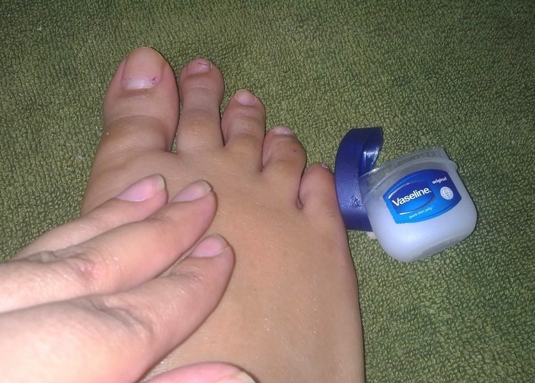 Massage feet with non-petroleum jelly and wear cotton socks to bed