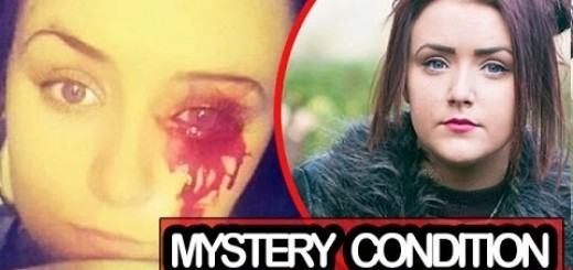 Strangely and sadly, this girl bleeds from her eyes and doctors have no idea what to do!!!
