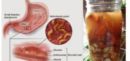 Suffering from any of these 4 types of stomach ailments? Here are remedies for each of them