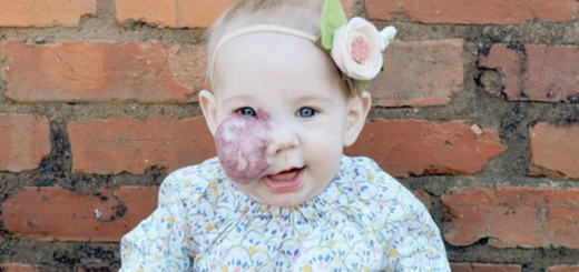 This mother took a brilliant step to destroy the stigma round her daughter's birthmark