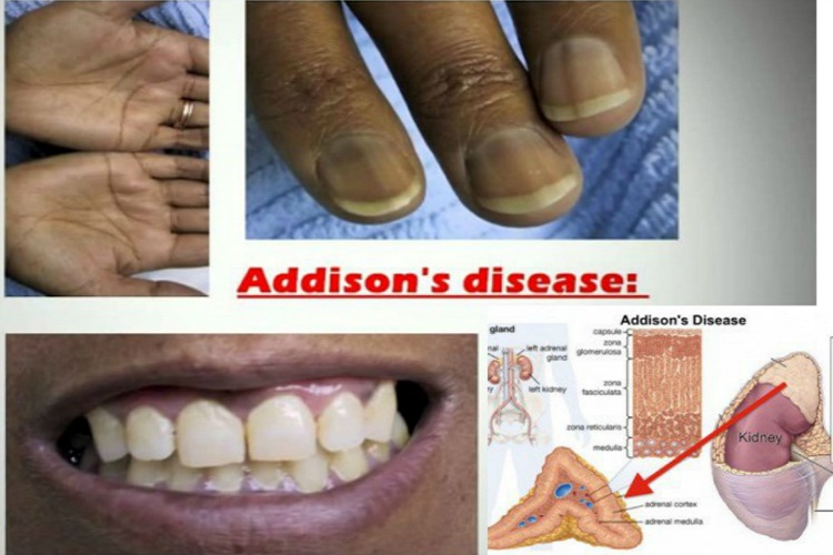 what is addison's disease? all the information you need about it!, Human body