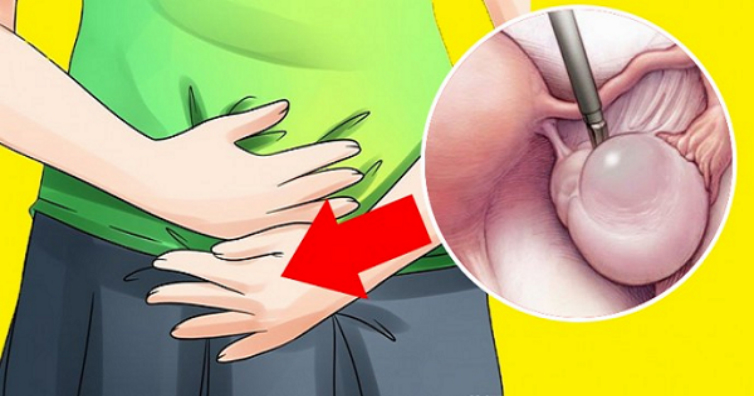 Image result for 8 Warning Signs Of Ovarian Cyst Every Woman Must Know